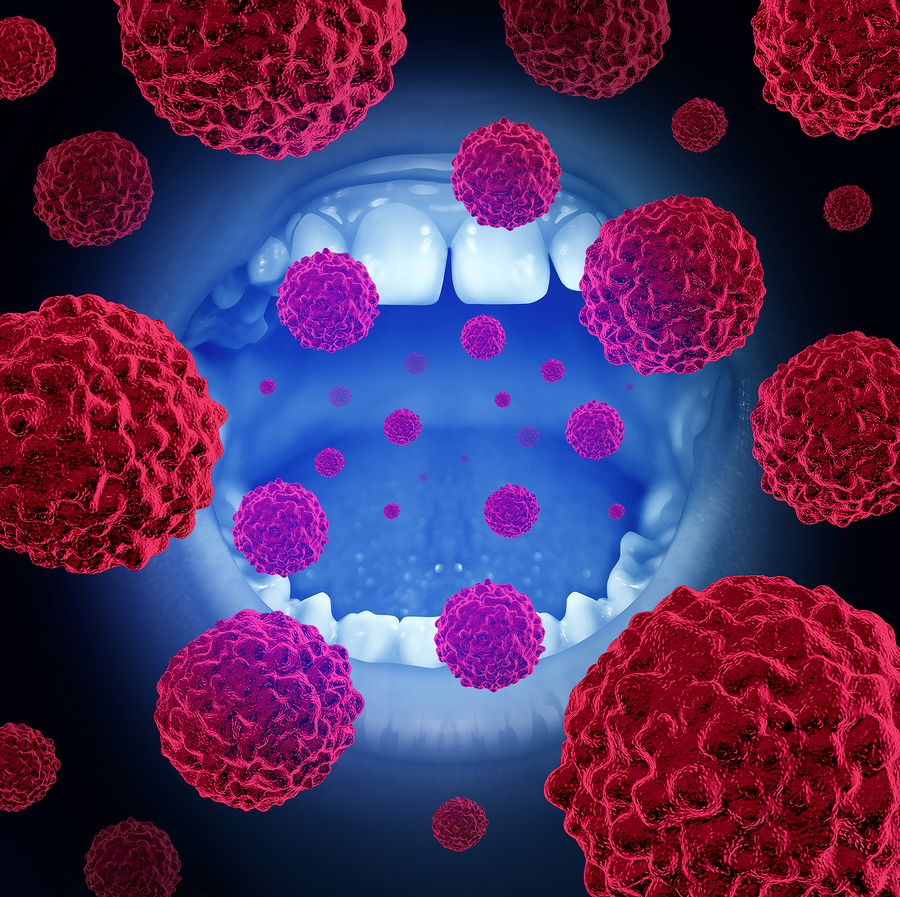 Detecting Oral Cancer: What You Need to Know
