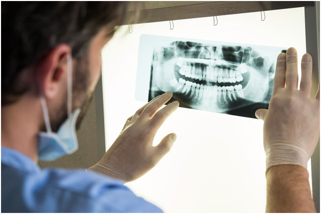 Why Are Dental X-rays Important to my Oral Health Care?